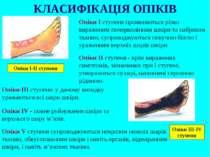 Опіки І ступеня проявляються різко вираженим почервонінням шкіри та набряком ...