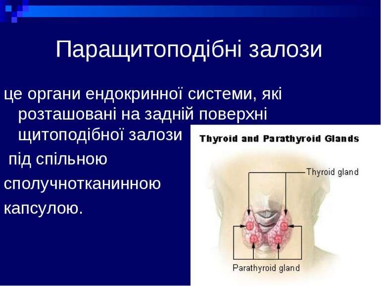 prezentatsya-na-temu-shitopodbna-zaloza