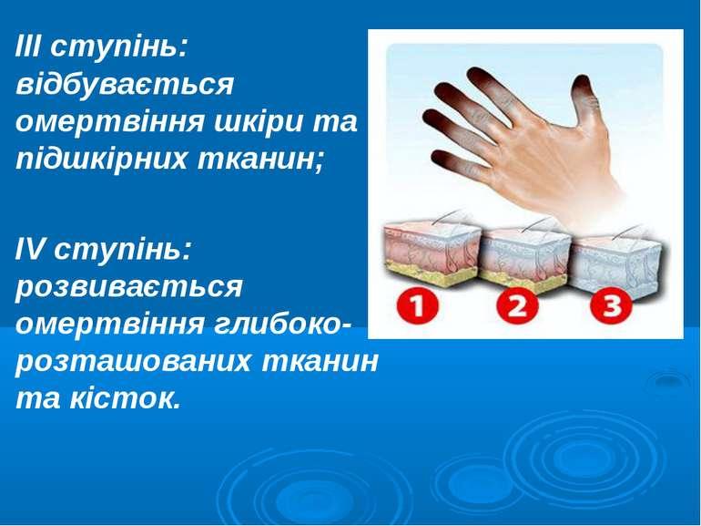 III ступінь: відбувається омертвіння шкіри та підшкірних тканин; IV ступінь: ...
