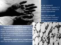 Ступені Променева хвороба 1-го (легкого) ступеня виникає при загальній експоз...