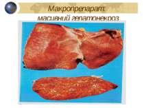 Макропрепарат: масивний гепатонекроз