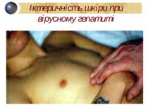 Іктеричність шкіри при вірусному гепатиті