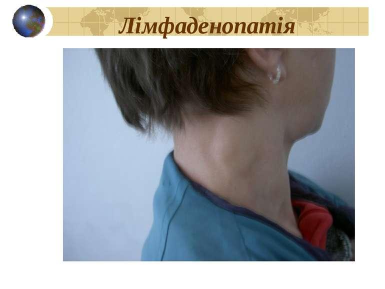Лімфаденопатія