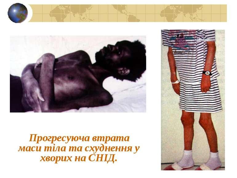 Прогресуюча втрата маси тіла та схуднення у хворих на СНІД.