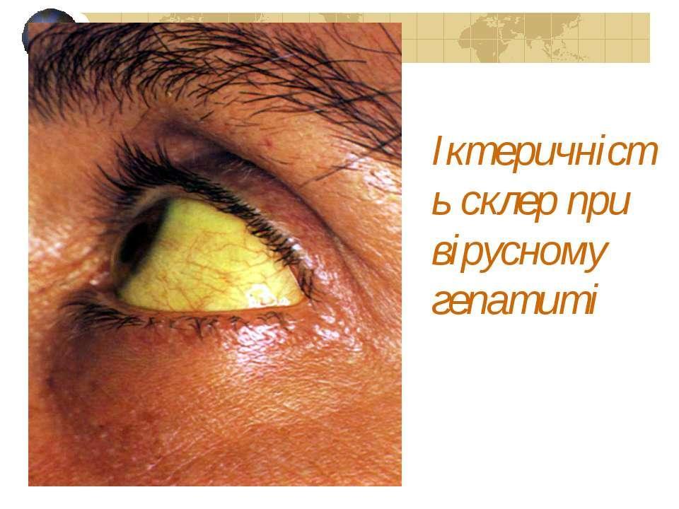 Іктеричність склер при вірусному гепатиті