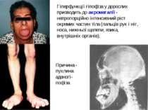 Гіперфункції гіпофіза у дорослих призводить до акромегалії - непропорційно ін...