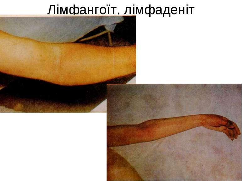 Лімфангоїт, лімфаденіт
