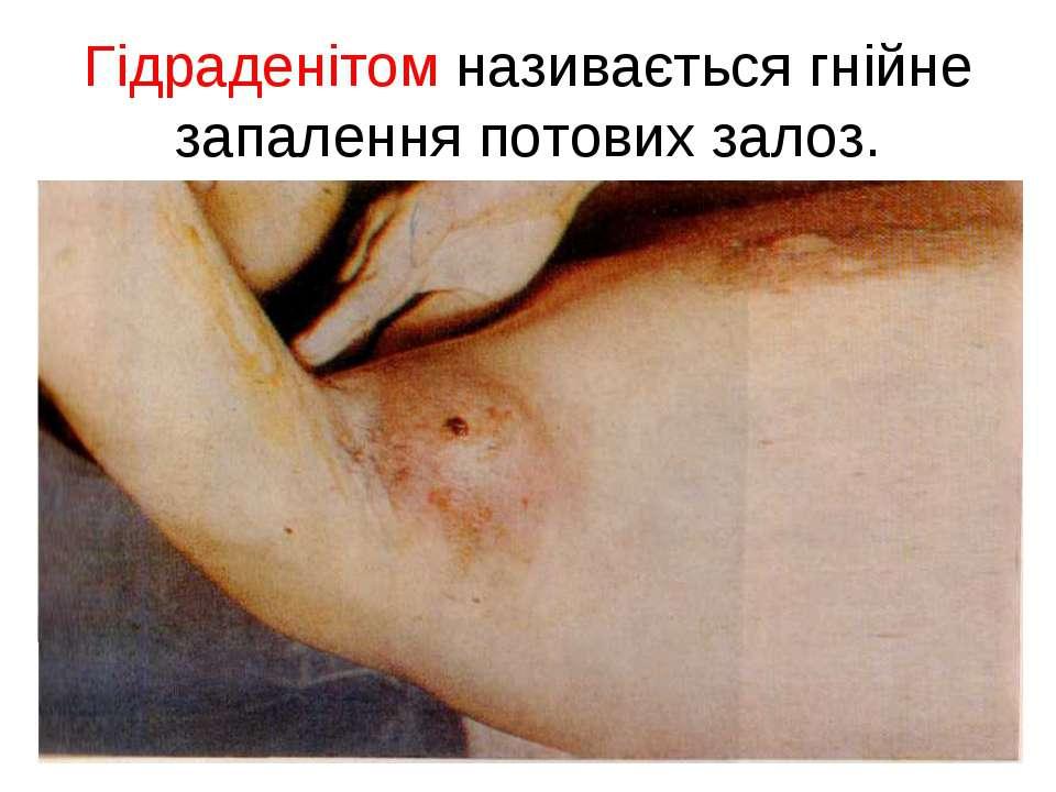 Гідраденітом називається гнійне запалення потових залоз.