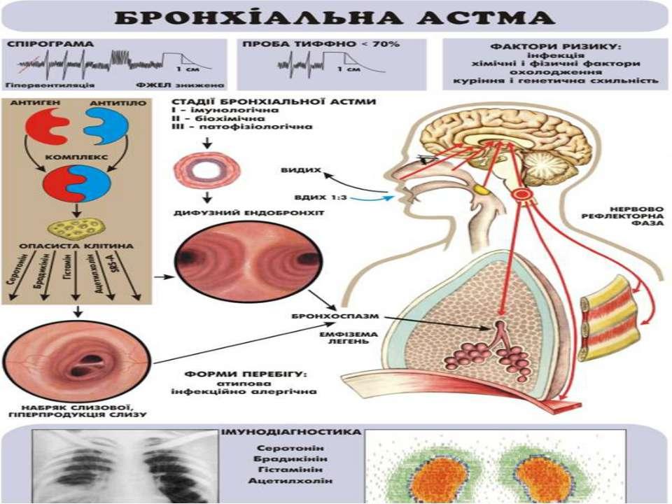 Схема патогенезу бронхіальної астми