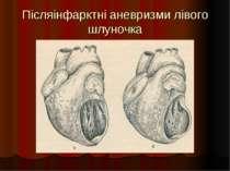 Післяінфарктні аневризми лівого шлуночка