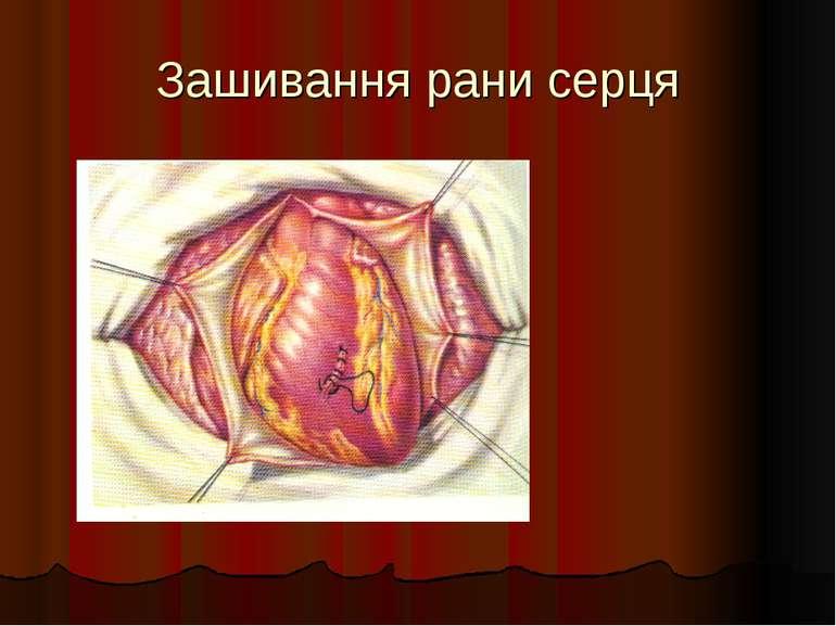 Зашивання рани серця
