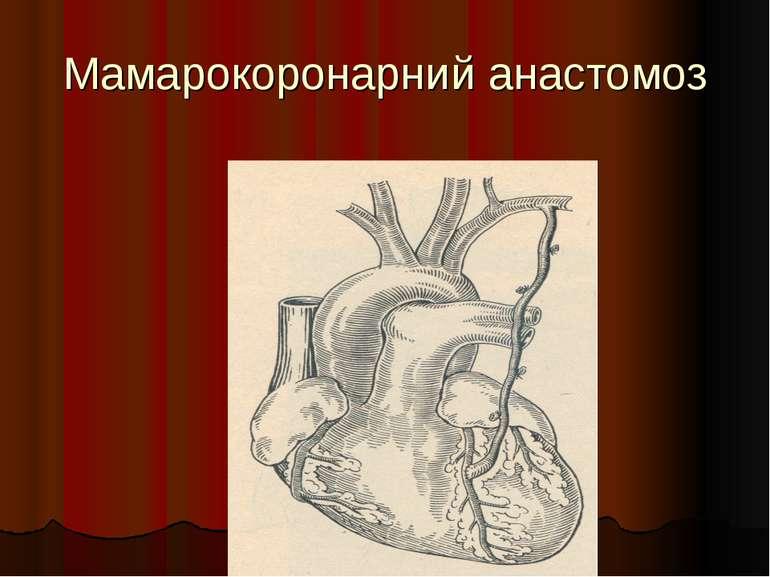 Мамарокоронарний анастомоз