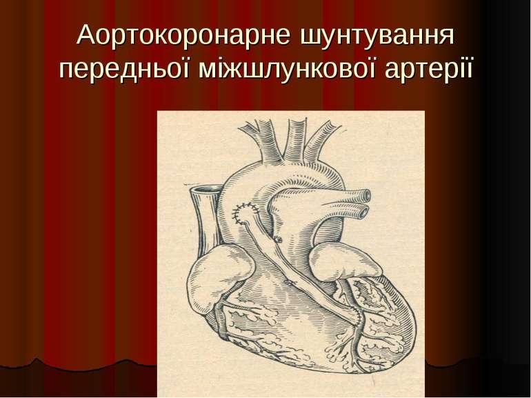 Аортокоронарне шунтування передньої міжшлункової артерії