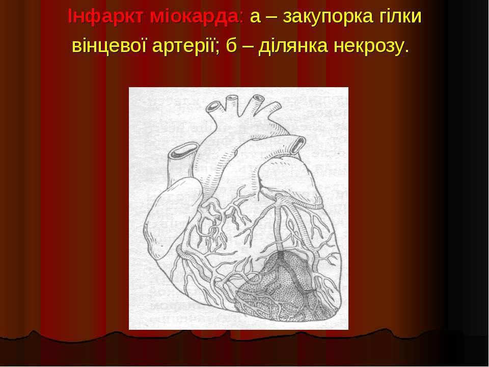 Інфаркт міокарда: а – закупорка гілки вінцевої артерії; б – ділянка некрозу.