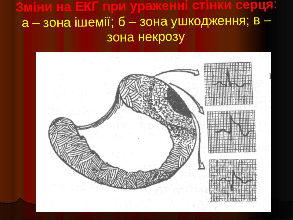 Зміни на ЕКГ при ураженні стінки серця: а – зона ішемії; б – зона ушкодження;...