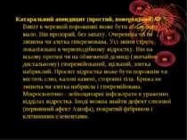 Катаральний апендицит (простий, поверхневий). Випіт в черевній порожнині може...