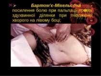 Ø Бартом'є-Міхельсона - посилення болю при пальпації правої здухвинної ді...