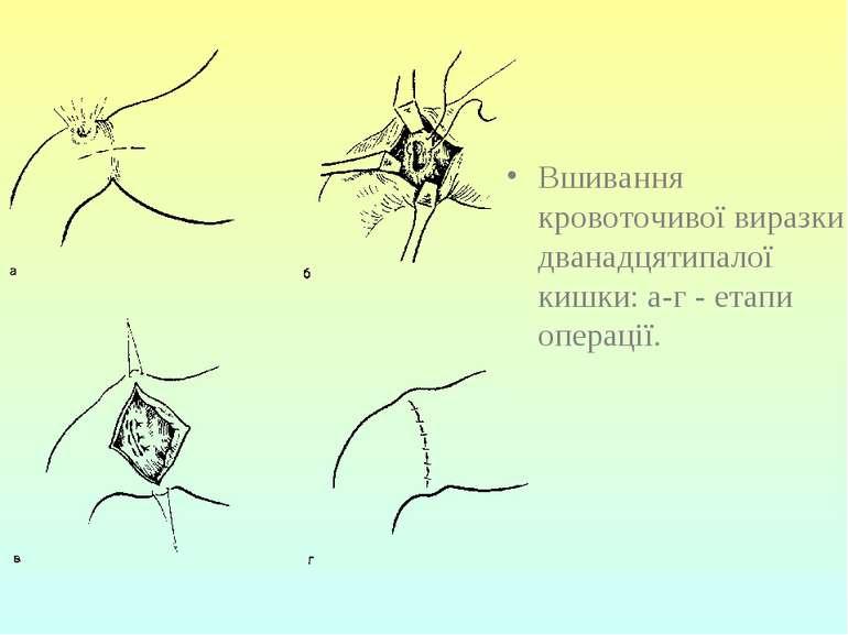 Вшивання кровоточивої виразки дванадцятипалої кишки: а-г - етапи операції.