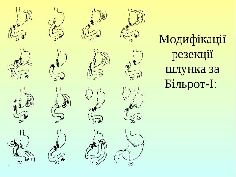 Модифікації резекції шлунка за Більрот-І: