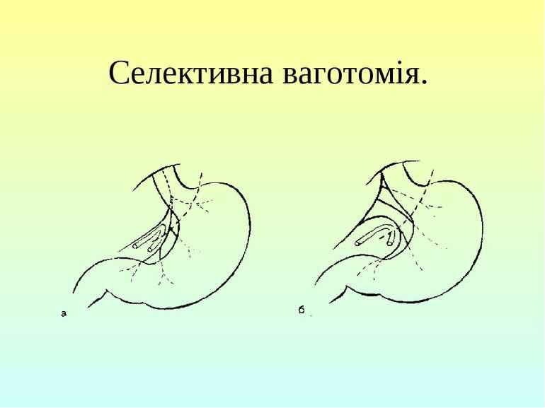 Селективна ваготомія.