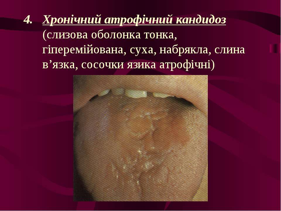 Хронічний атрофічний кандидоз (слизова оболонка тонка, гіперемійована, суха, ...
