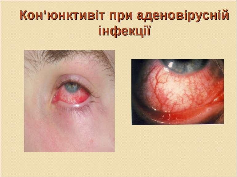 Кон'юнктивіт при аденовірусній інфекції