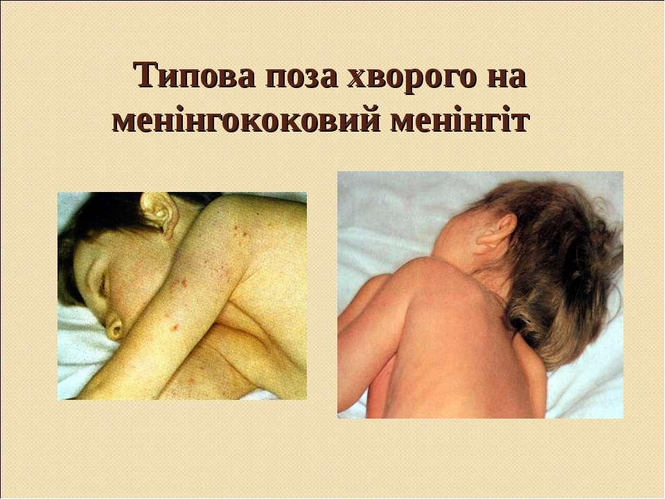 Типова поза хворого на менінгококовий менінгіт
