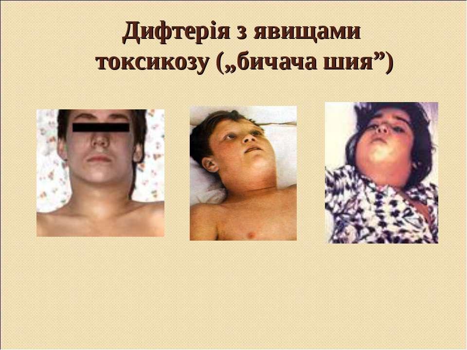 """Дифтерія з явищами токсикозу (""""бичача шия"""")"""