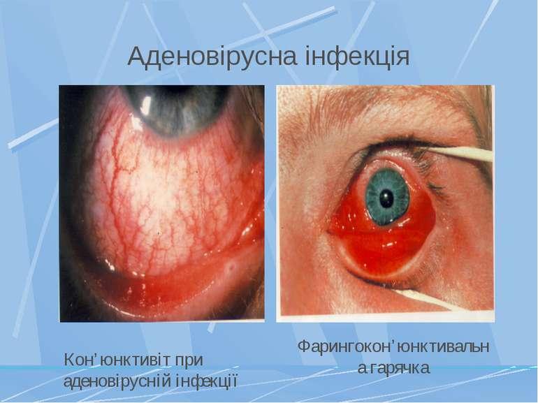 Аденовірусна інфекція Фарингокон'юнктивальна гарячка Кон'юнктивіт при аденові...