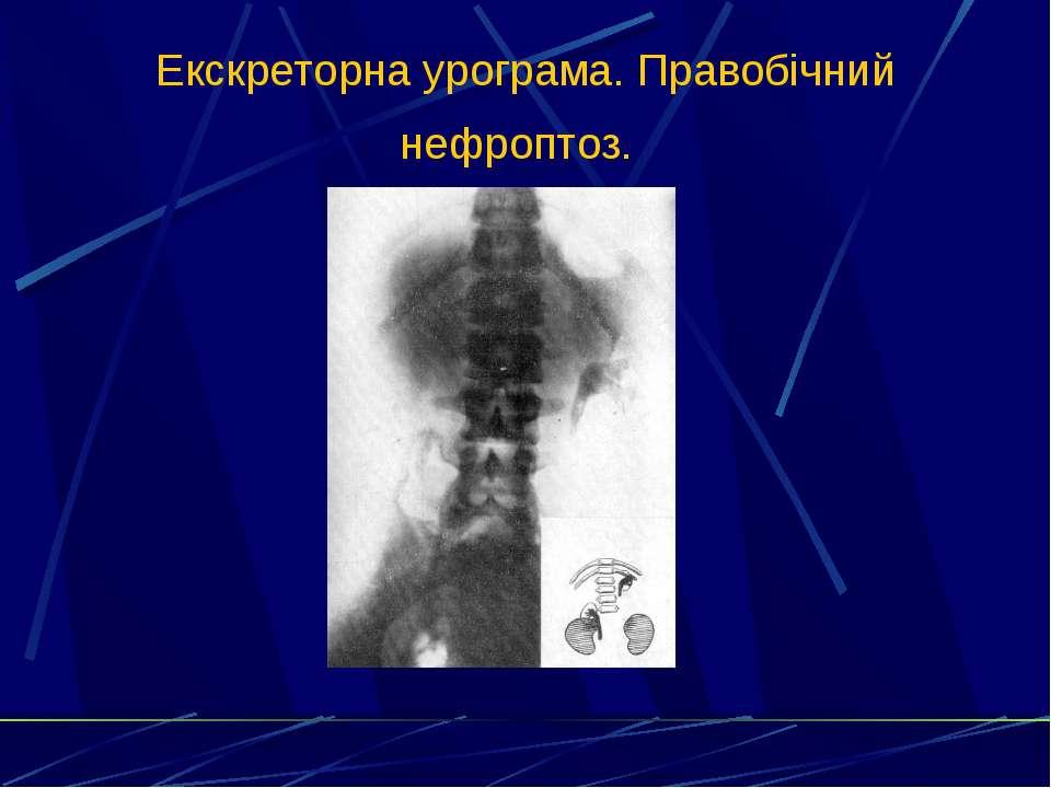 Екскреторна урограма. Правобічний нефроптоз.
