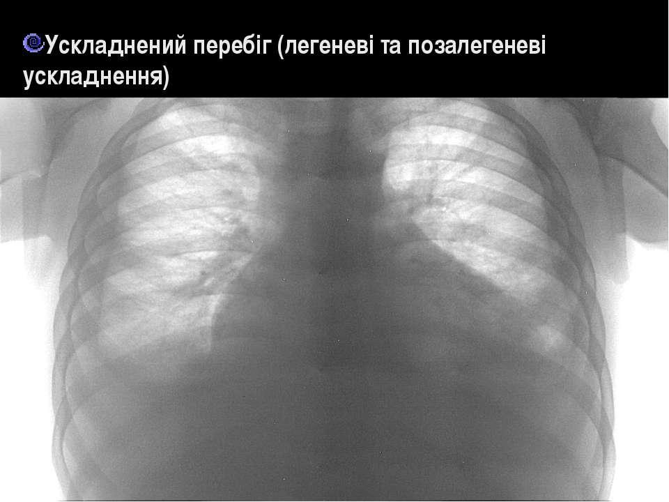 Ускладнений перебіг (легеневі та позалегеневі ускладнення)
