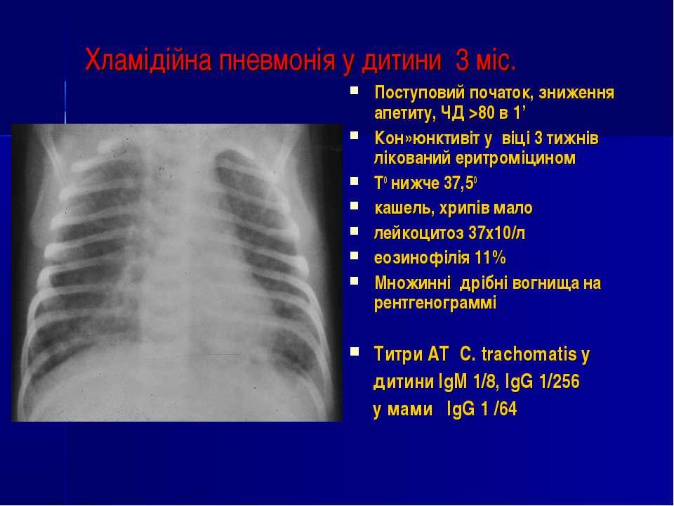 Хламідійна пневмонія у дитини 3 міс. Поступовий початок, зниження апетиту, ЧД...