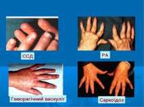 ССД РА Геморагічний васкуліт Саркоїдоз