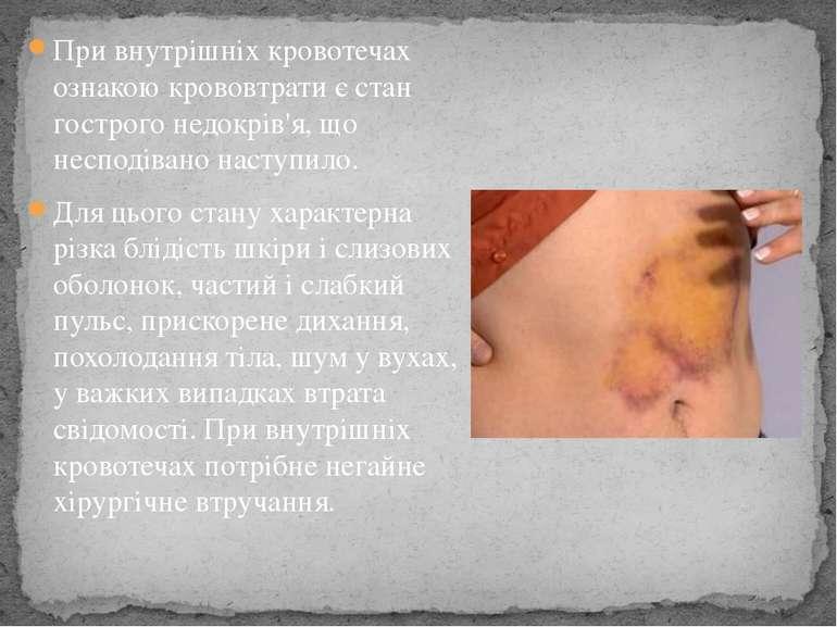 При внутрішніх кровотечах ознакою крововтрати є стан гострого недокрів'я, що ...