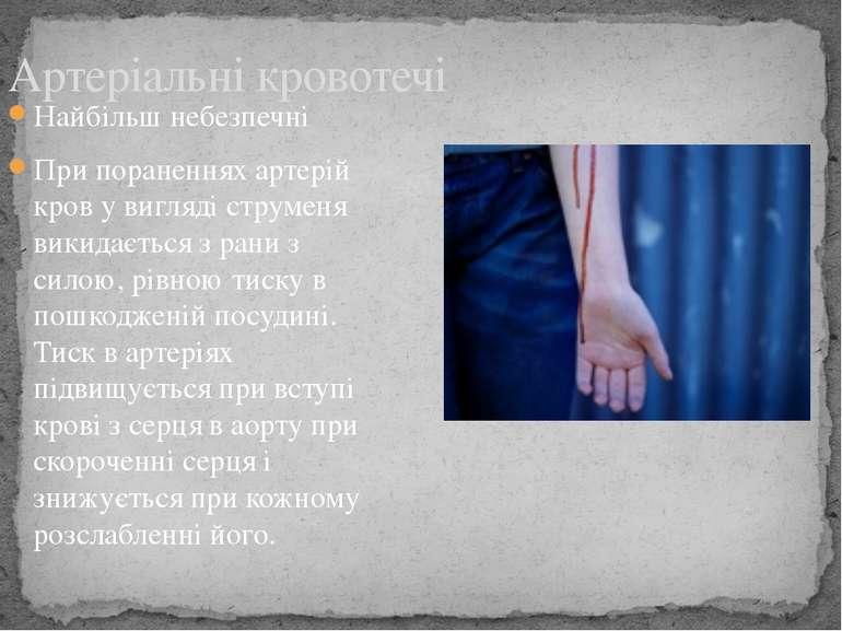 Найбільш небезпечні При пораненнях артерій кров у вигляді струменя викидаєтьс...