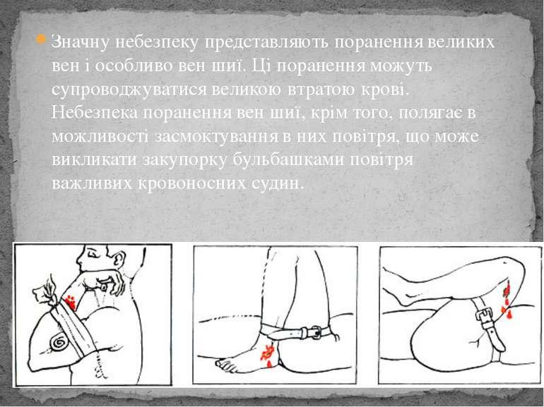 Значну небезпеку представляють поранення великих вен і особливо вен шиї. Ці п...
