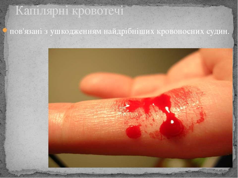 пов'язані з ушкодженням найдрібніших кровоносних судин. Капілярні кровотечі