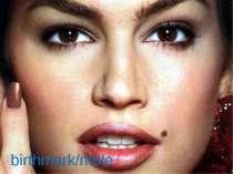 birthmark/mole