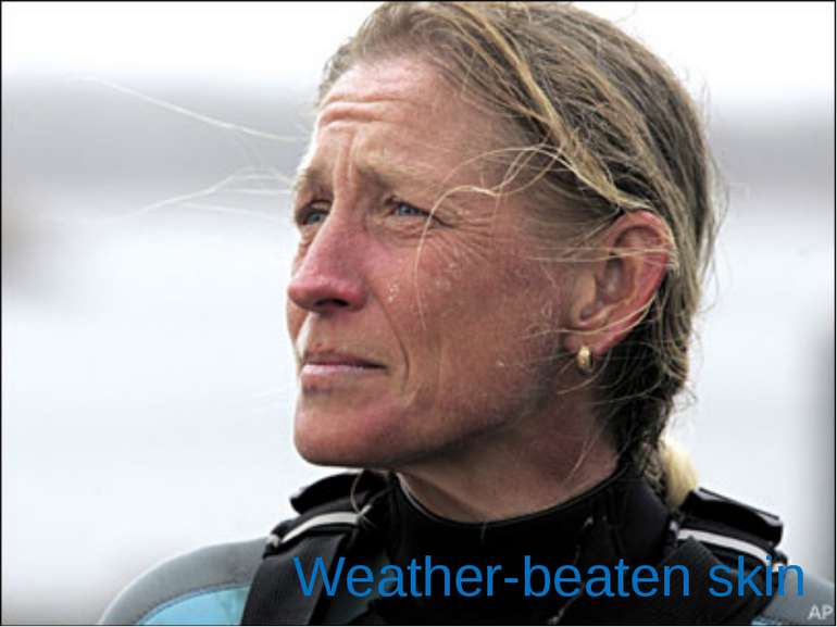 Weather-beaten skin