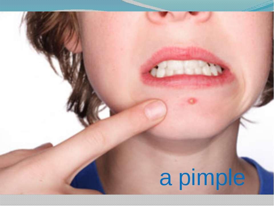 a pimple