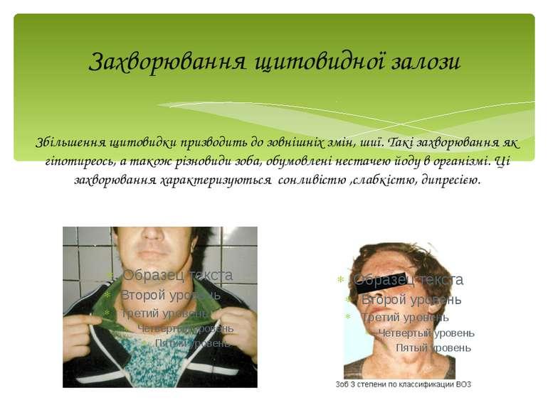 Захворювання щитовидної залози Збільшення щитовидки призводить до зовнішніх з...