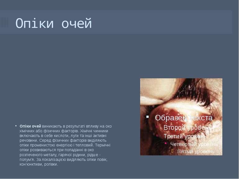 Опіки очей Опіки очей виникають в результаті впливу на око хімічних або фізич...