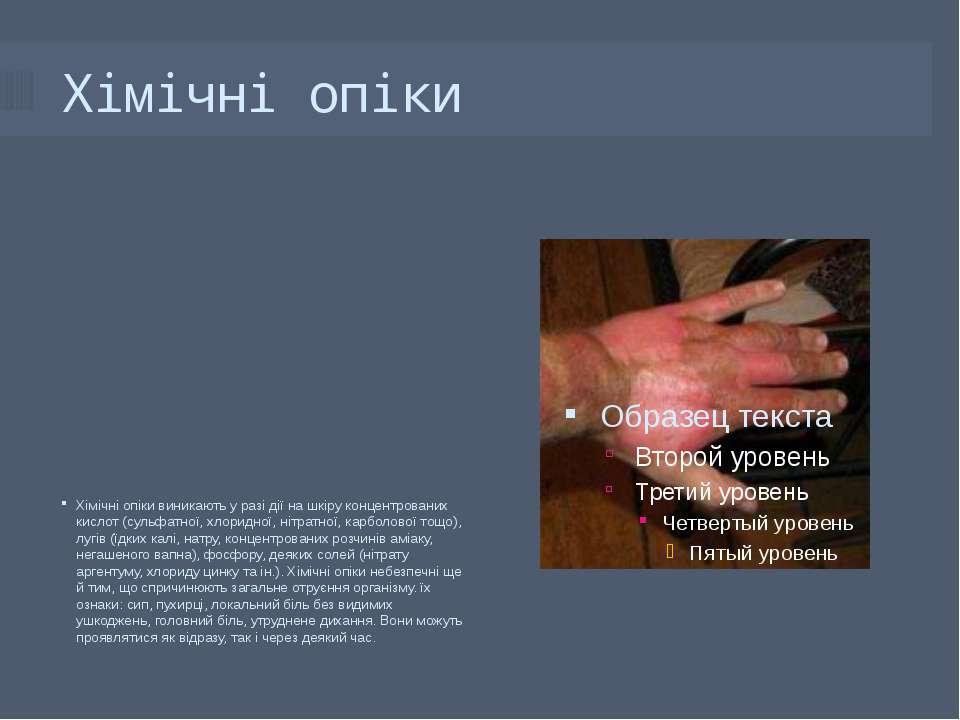 Хімічні опіки Хімічні опіки виникають у разі дії на шкіру концентрованих кисл...