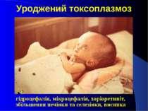 Уроджений токсоплазмоз гідроцефалія, мікроцефалія, хоріоретиніт, збільшення п...