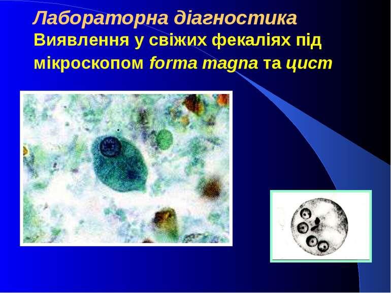 Лабораторна діагностика Виявлення у свіжих фекаліях під мікроскопом forma mag...