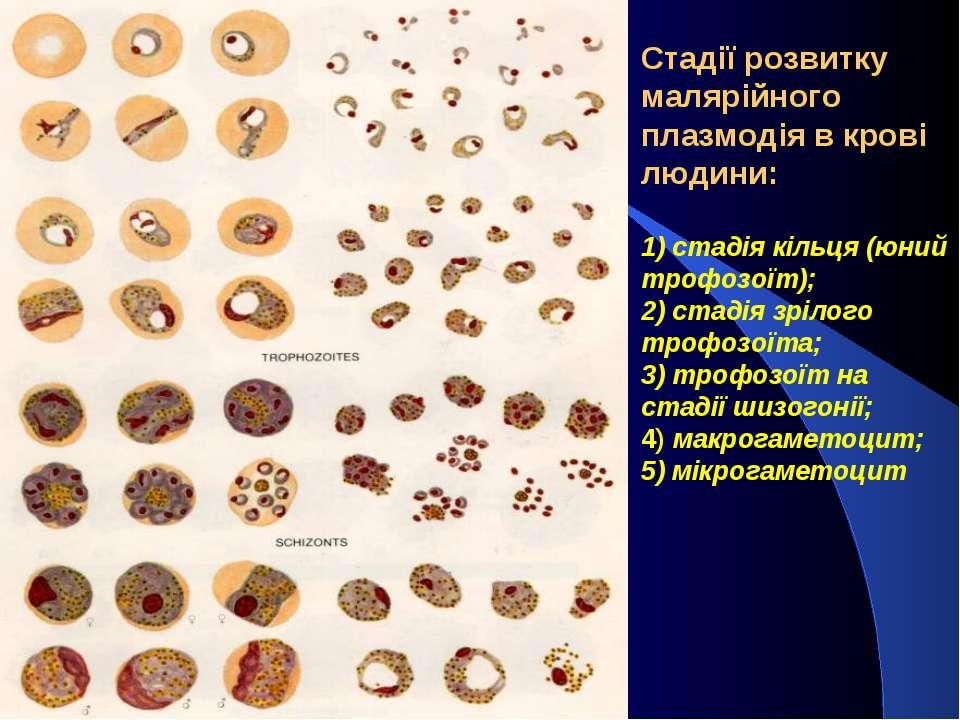 Стадії розвитку малярійного плазмодія в крові людини: 1) стадія кільця (юний ...