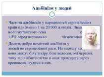 Альбінізм у людей Частота альбіносів у народностей європейських країн приблиз...