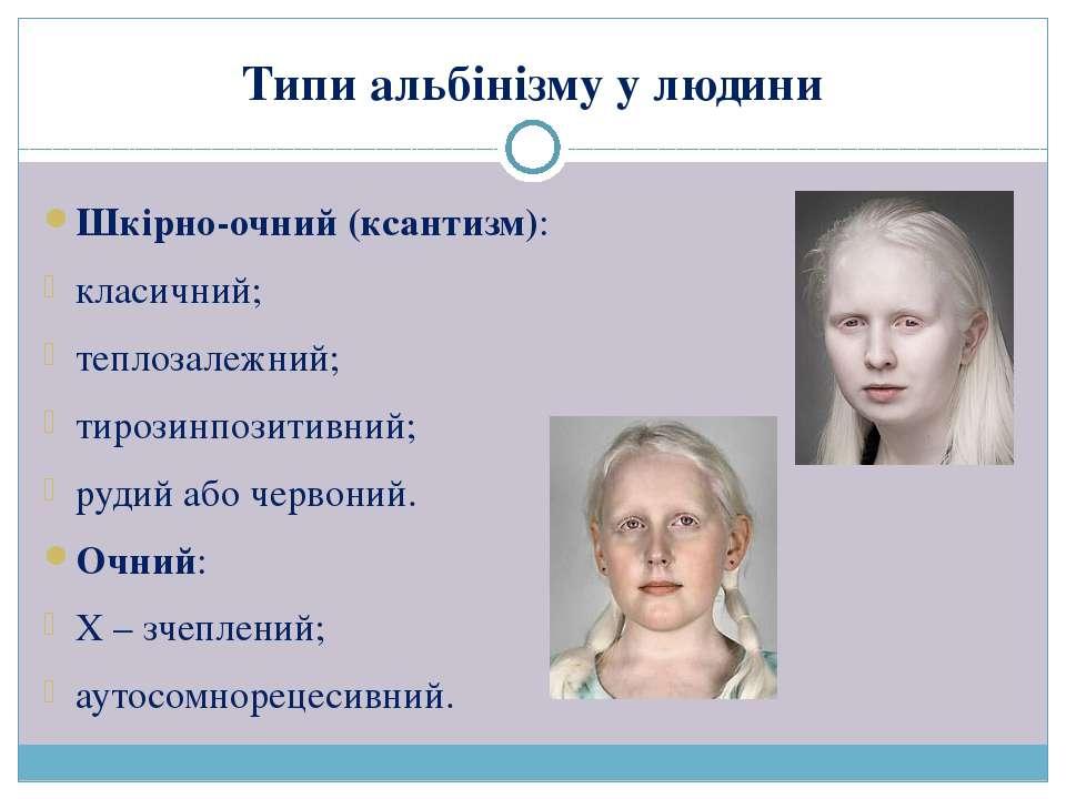 Типи альбінізму у людини Шкірно-очний (ксантизм): класичний; теплозалежний; т...