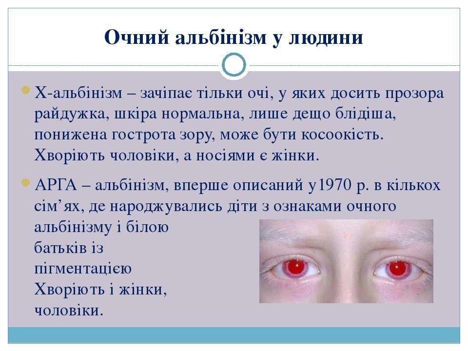 Х-альбінізм – зачіпає тільки очі, у яких досить прозора райдужка, шкіра норма...