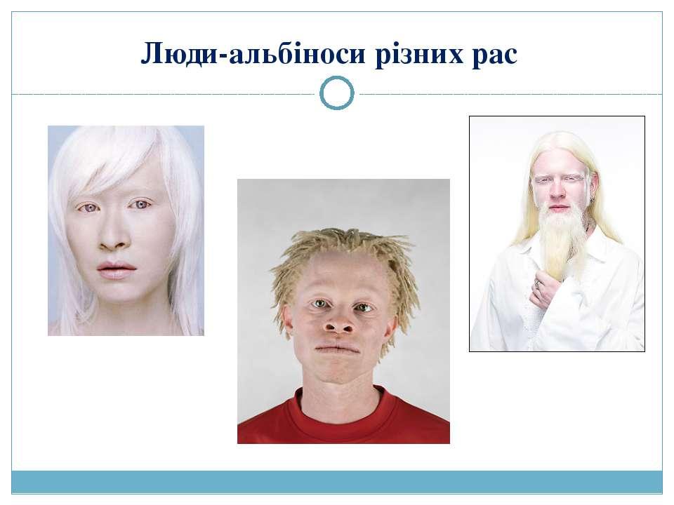 Люди-альбіноси різних рас
